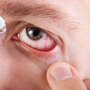 Alergias oculares: tratamento e cuidados importantes para evitá-las