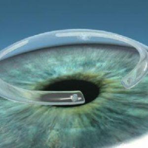 Anel intraestromal – Mitos e verdades