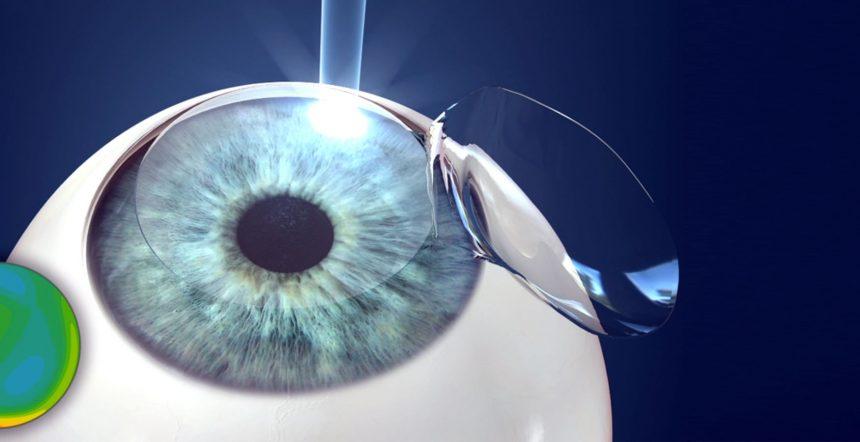 Cirurgia refrativa personalizada X Cirurgia refrativa convencional