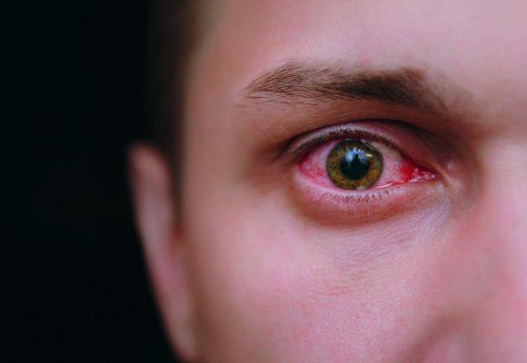 Esforços e impactos que podem comprometer a saúde ocular