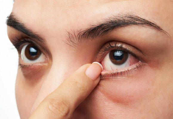 10 dias úteis para evitar a alergia ocular