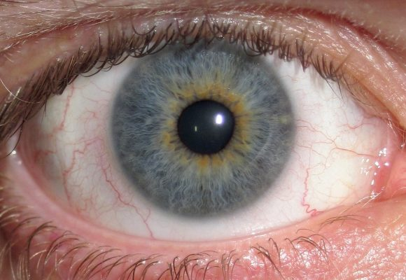 O que você precisa saber sobre doenças da retina