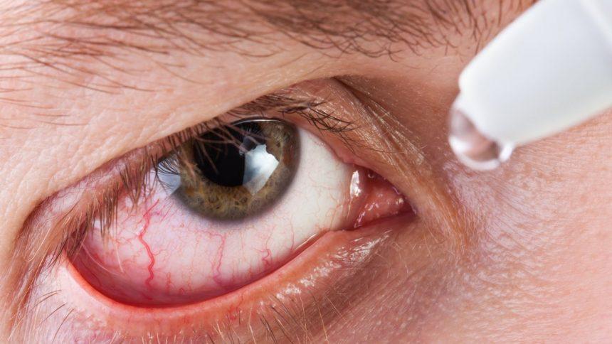 Como cuidar do olho seco